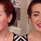 Scar cover up make-up tutorial